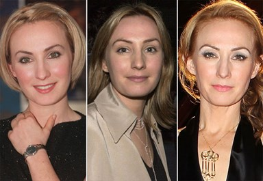 The changing face of Lisa McCune