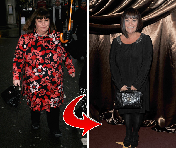 Dawn French Weight Loss Amazing celebrity weig...