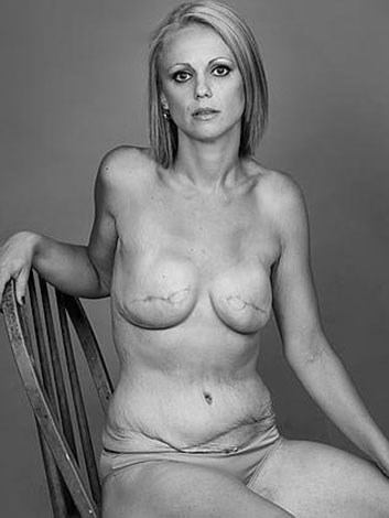 Beth wanted to encourage other women to get regular breast checks.