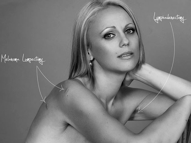 Beth says she is proud of her body because it has beat cancer. Warning: confronting images featured.